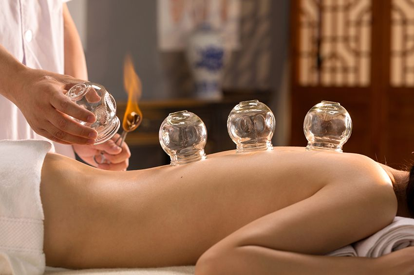 What Are the Different Types of Cupping?